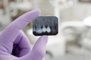 X-ray of teeth